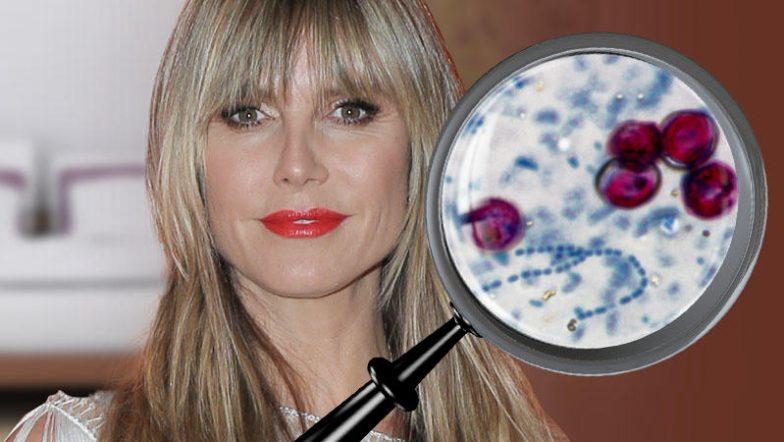 Parasiten Heidi Klum